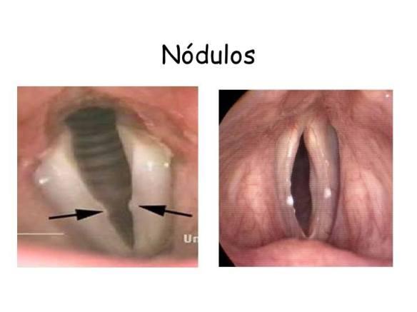 Nódulos vocais